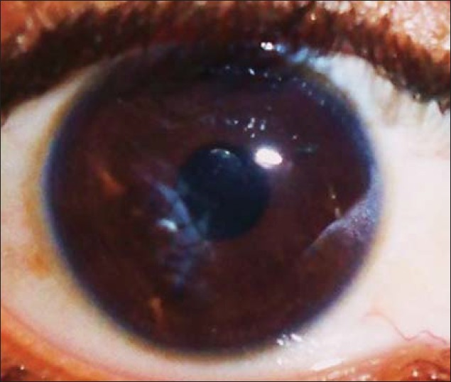 Figure 4: Post cataract extraction with intra ocular lens implantation (postoperative)
