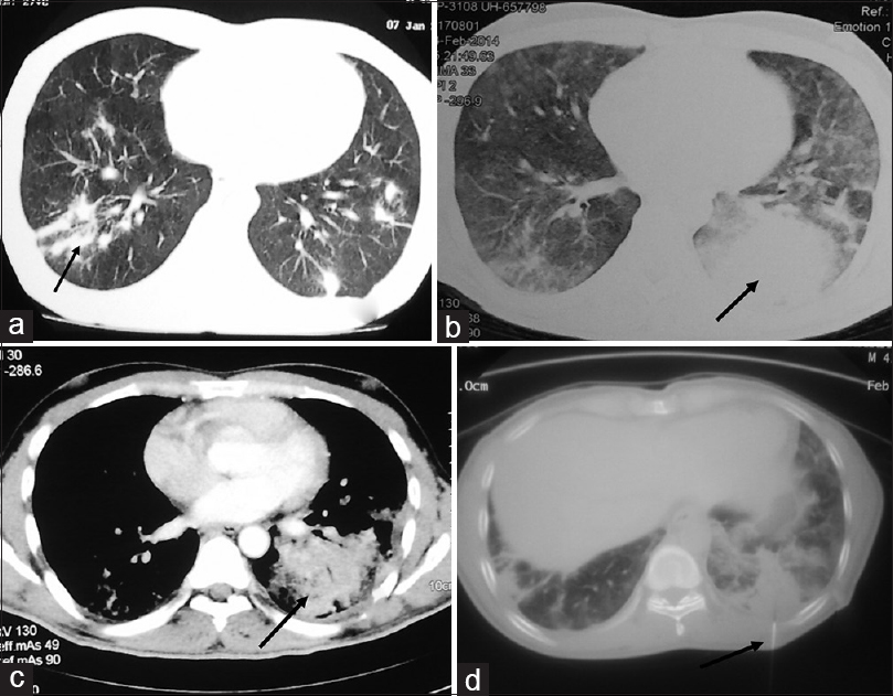 Figure 1: CT axial lung window showing scattered parenchymal opacities (black arrow a), wider parenchymal consolidations in the CT axial lung window (b, black arrow) and mediastinal window (c, black arrow), and CT-guided lung biopsy (needle pointed by black arrow d)