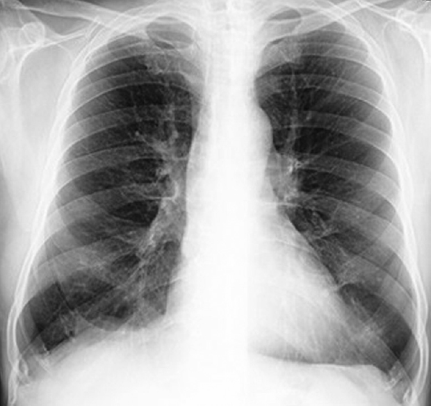 Figure 1: Chest radiograph (PA view) showing bilateral hyperinflated lung fields with low flat diaphragms